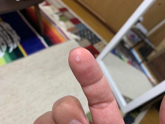 指にゴマつぶ大とる